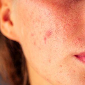 Blemish Clarifying Facial Oil